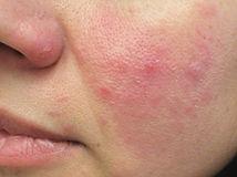 Rosacea | Red Skin | Flushing | Soolantra | Mirvaso |