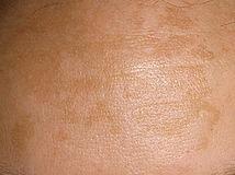 Melasma | Pigmentation | Hyperpigmentation | Brown patches on Face | Obagi | Hydroquinone | Tranexamic Acid | Obagi; Hydroquinone; Tranexamic Acid