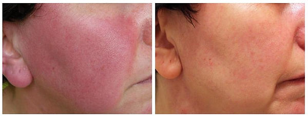 Rosacea | Red Cheeks | Flushing | Pimples |