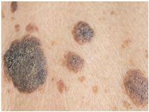 Seborrhoeic Warts; Cryotherapy; Freezing