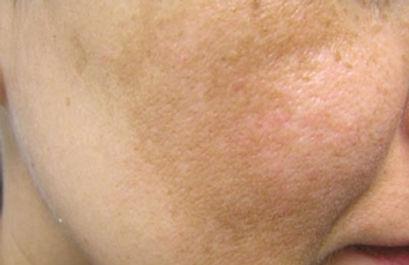 Melasma | Skin Hyper Pigmentation | Obagi | Hydroquinone | Tranexamic Acid | Retinoids |