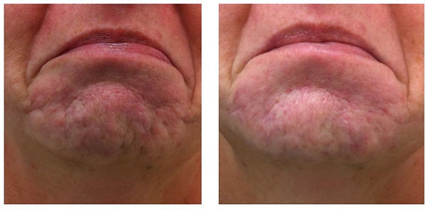 Acne Scars | Dermal Fillers | Chin Lines |