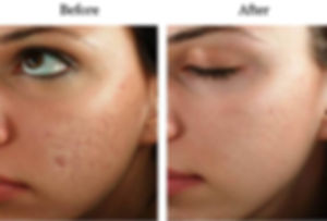 Micro-needling-acne-scars-before-and-aft