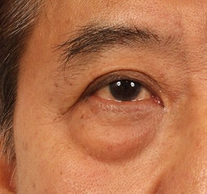 eyebag.jpg