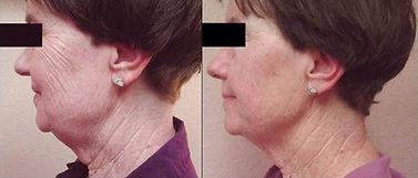 UltraSlim Before and After Age 75.jpg