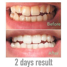 organic teeth whitening paste, organic toothpaste, whitening results, brushme paste