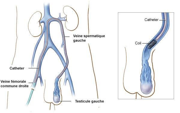 variocele2.jpg