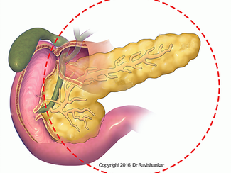 The Common Disorders Of The Pancreas - What You Should Know