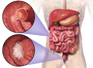 Colon Cancer Causes, Signs And Treatments