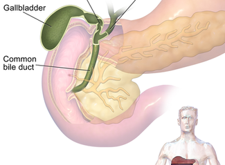 How to prevent Gall Bladder problems?