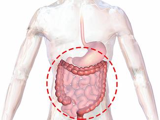 Colon Disease