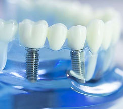 dental-implants-header.jpg