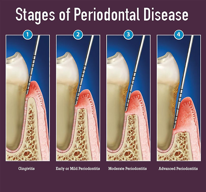 graphic-2-stages-of-periodontitis.jpg