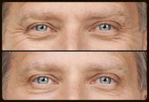 Homme toxine botulique pattes d oies rides yeux centre laser deauville