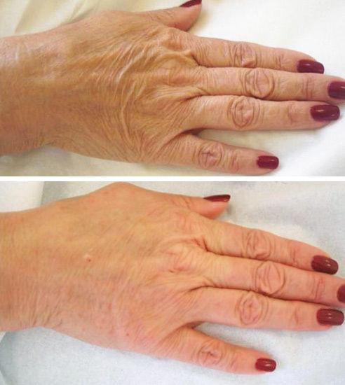 Rajeunir vos mains avec le laser avant apres centre de deauville