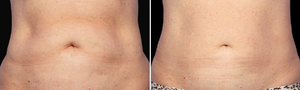 cryolipolyse ventre femme centre laser deauville