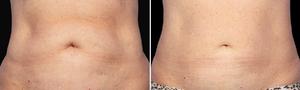 cryolipolyse ventre femme centre laser deauville