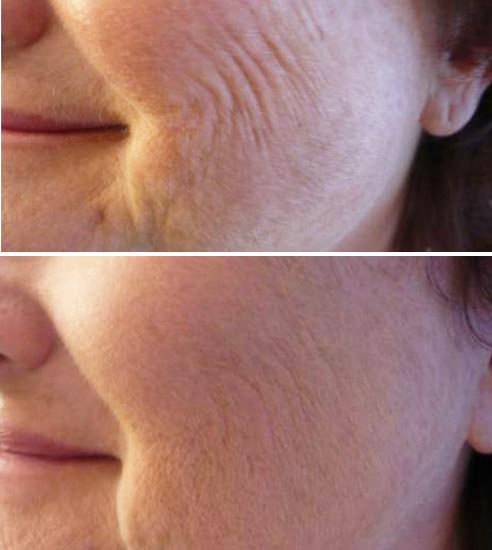Mesolift mesotherapie skinbooster centre laser epilation deauville