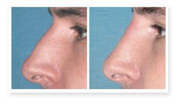 Rhinoplastie medicale homme centre esthetique laser epilation Deauville