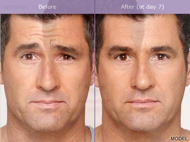 Homme Facelift Avant Apres Centre Esthetique Laser Deauville