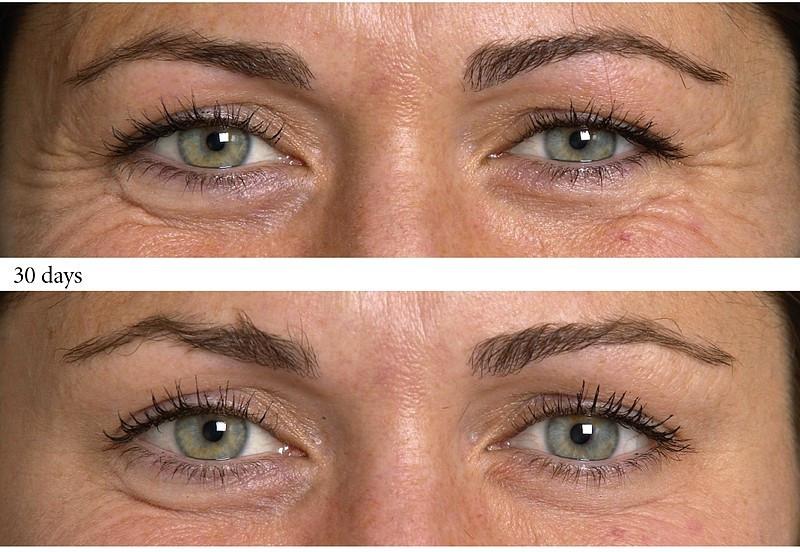 acide hyaluronique rides yeux