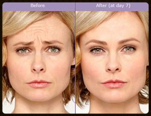 Femme botox avant apres centre deauville
