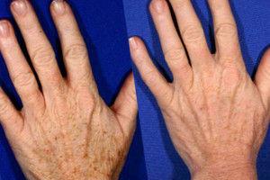 Traitement taches brunes sur les mains