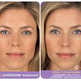 Avant Apres injections acide hyaluronique visage