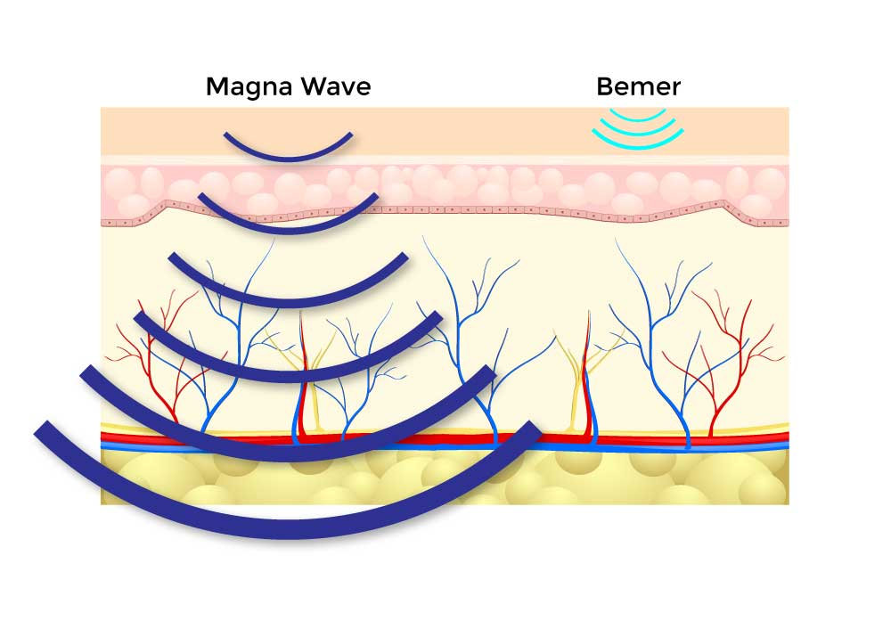magna-wave-vs-bemer-through-the-body.jpg