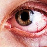 glaucoma-nqwbayxzs45774ksyr6yk2ky9525fhb