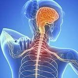 esclerosis.jpg_485631662.jpg
