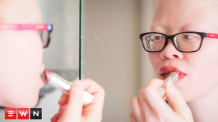 What Albinism taught me about beauty
