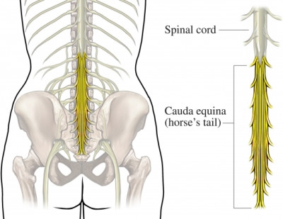 CEN Tip of the Day - Cauda Equina Syndrome