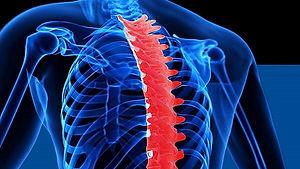 T-Spine-.jpg