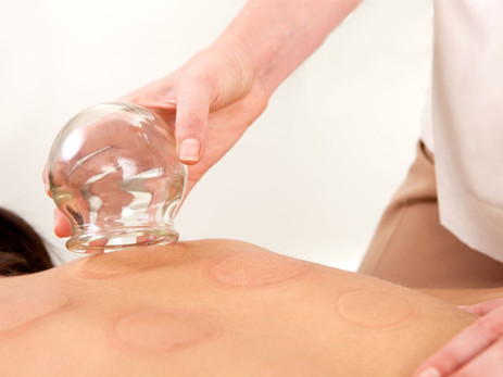 Therapeutic Cupping: A New (Yet Ancient) Technique