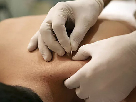Getting To The Point Of Dry Needling