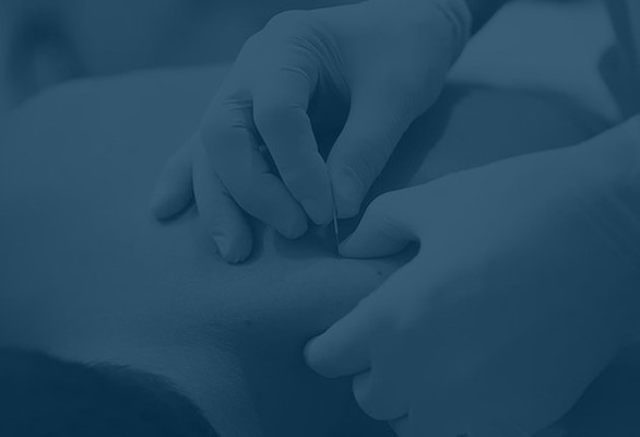 physical therapy, dry needling, dry needling physical therapy, post op therapy, prehab therapy, sports injuries, work injuries, nonsurgical treatment