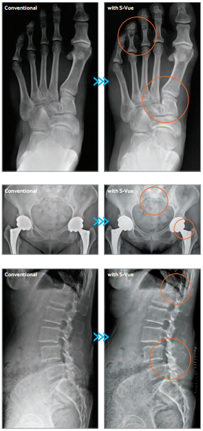 orthopedic on-site x-ray, orthopedic on-site diagnostic services