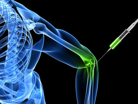Healing Aches and Pains (Without Surgery)