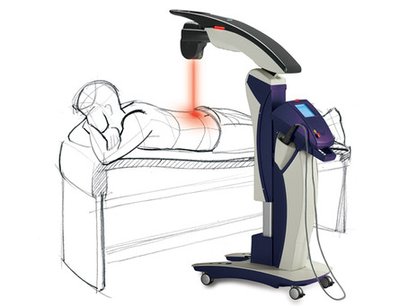 Frequently Asked Questions About MLS Laser Therapy