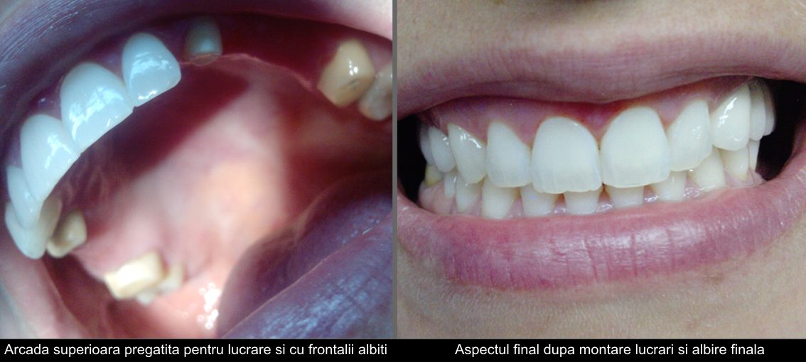 Whitening and aesthetic treatment