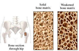 Bones for Life enhances healthy bones.