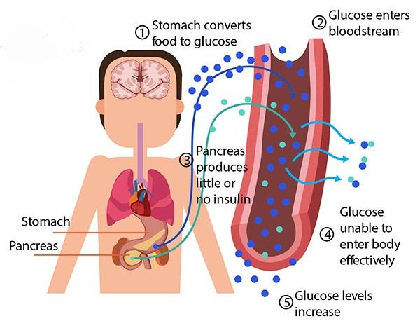 Diabetes type 2 causes - foodogma