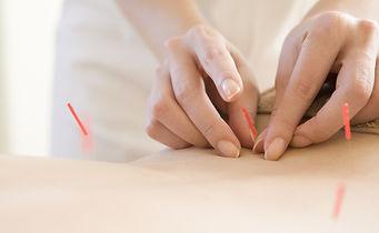 Acupuncture & Moxibustion - Sen Health Clinic