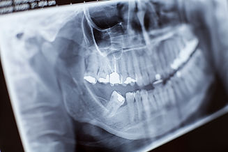 x-ray-close-up-NVUP9J7.jpg