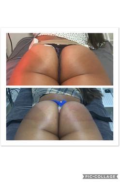Buttocks Lift