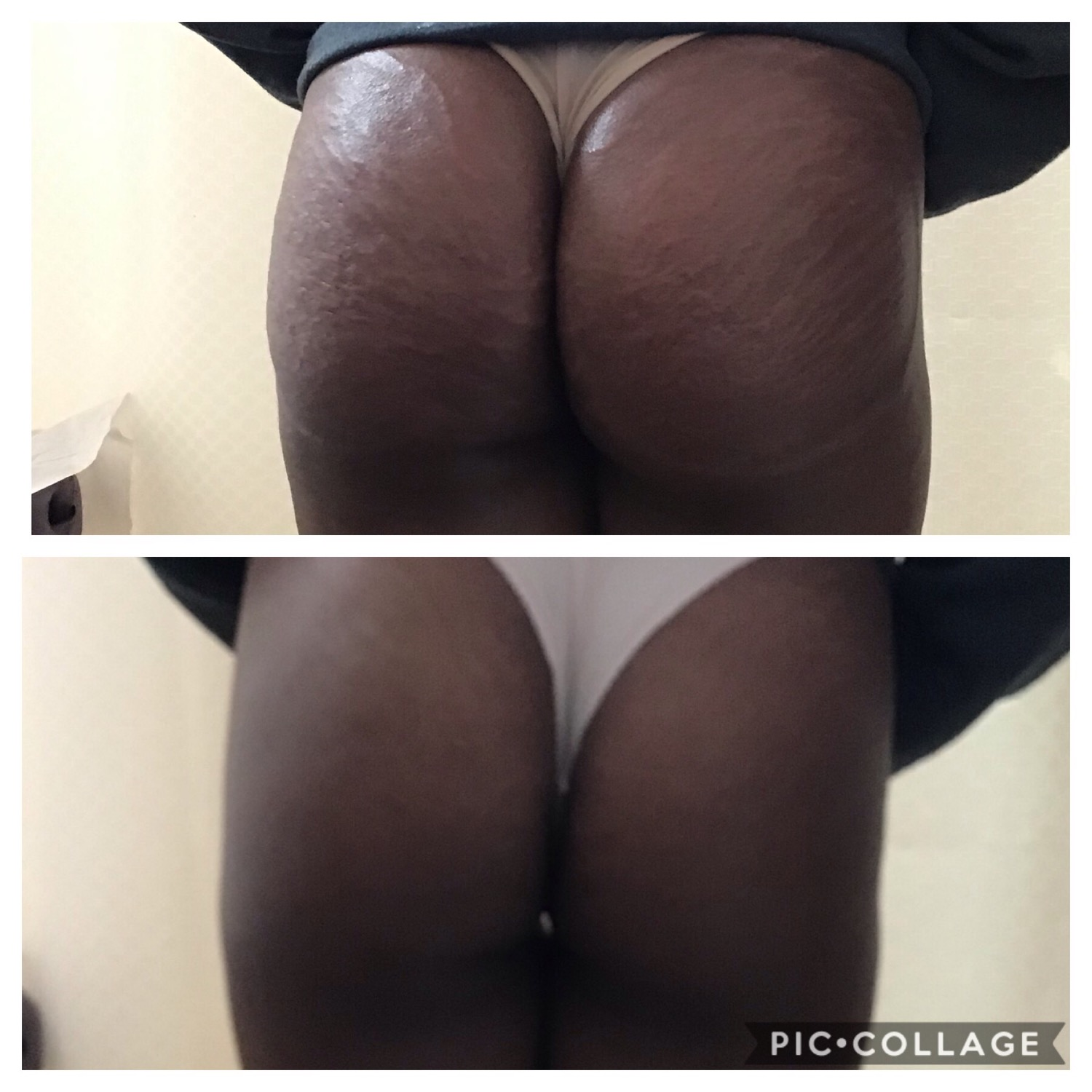 Buttocks Enhancement & Lift