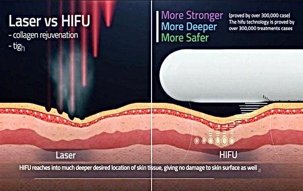HIFU_laser_vaginal_rejuvenation_.jpg