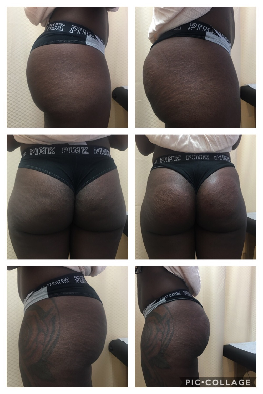 Buttock Lift and  Lipo Laser