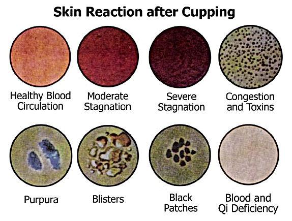 Skin-reaction.jpg